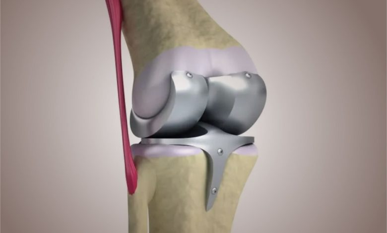 total knee replacement surgeries